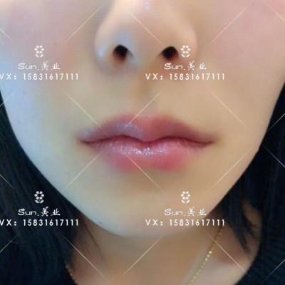 韩式半永久性纹唇